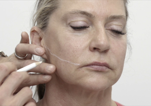 Non-Surgical Facelift Melbourne